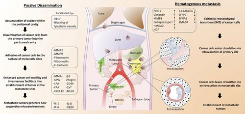 Cellular And Molecular Processes In Ovarian Cancer Metastasis A Review In The Theme Cell And Molecular Processes In Cancer Metastasis American Journal Of Physiology Cell Physiology