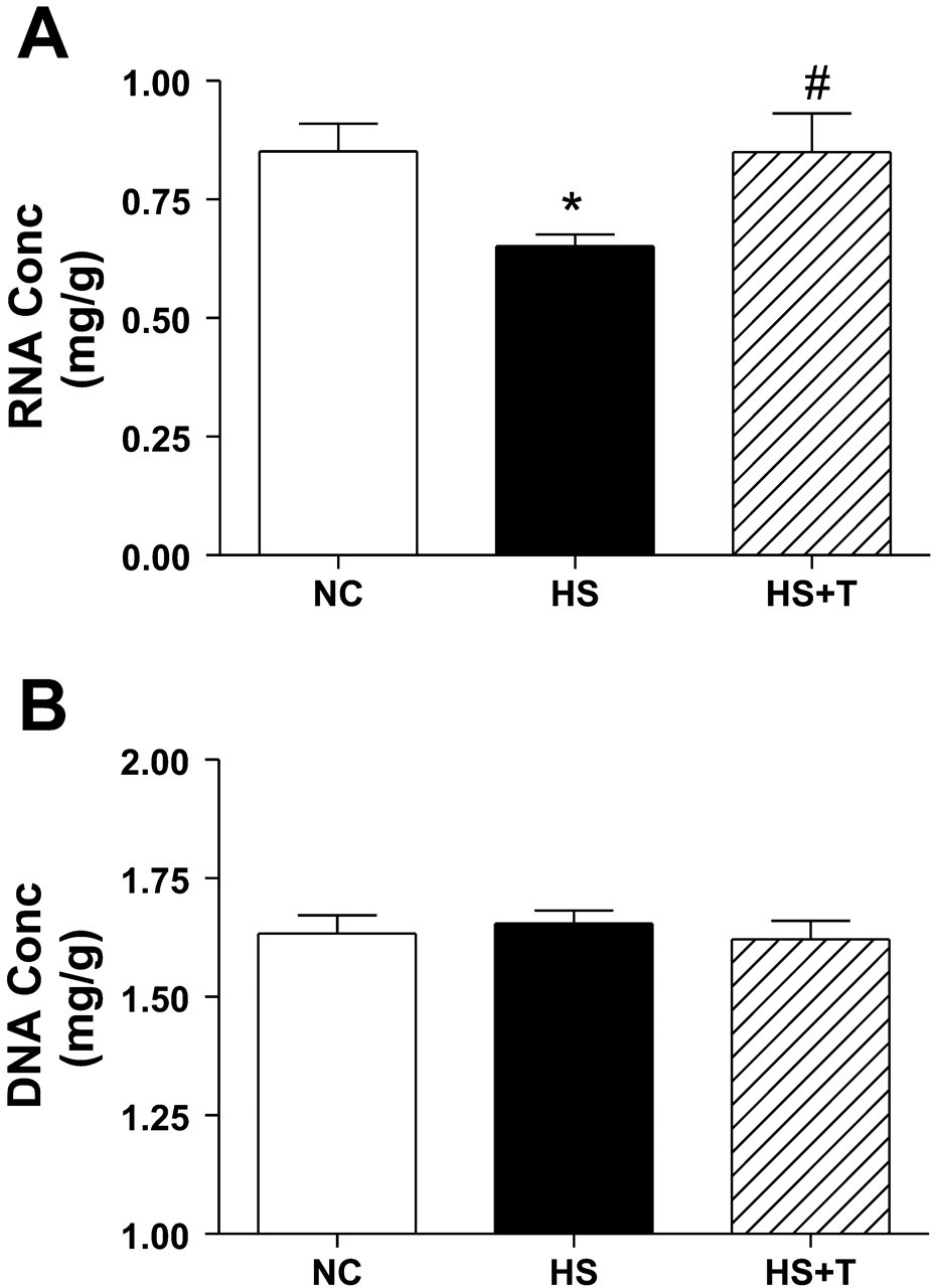 Isometric resistance exercise fails to counteract skeletal ...